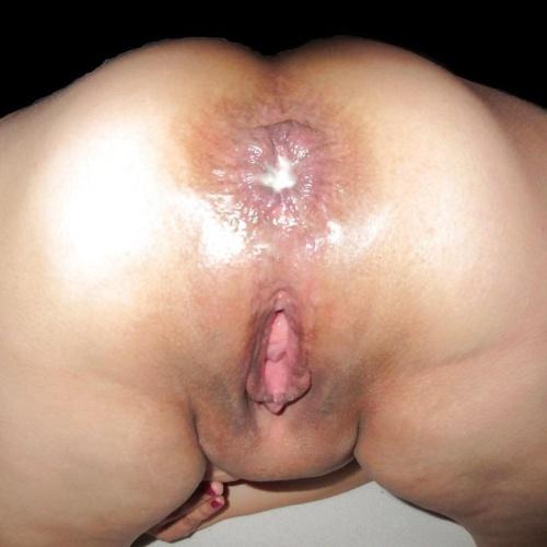 Sharp pain after sex