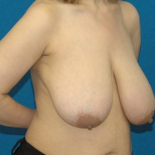 Plastic surgeons specializing in breast reduction near me