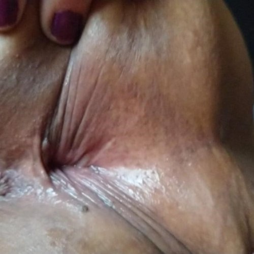 Light bleeding after anal