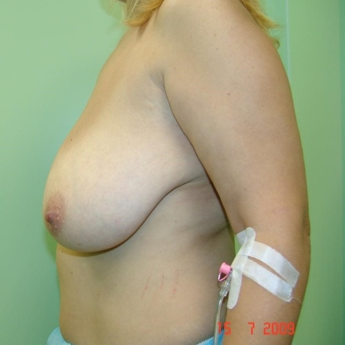 Breast reduction consultation