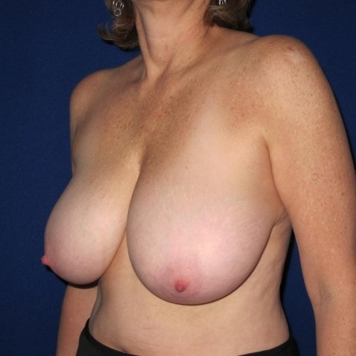 Breast reduction c cup