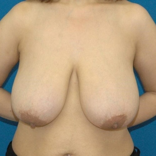 Breast reduction surgery price