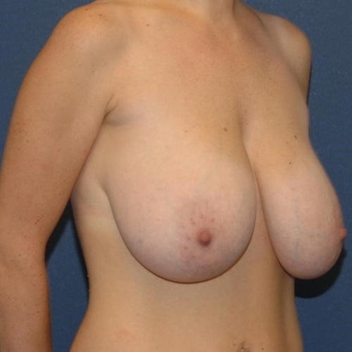 Breast reduction under medicare