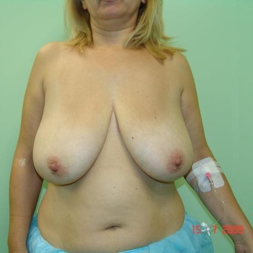 Breast reduction and lift surgery