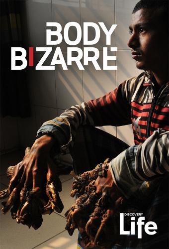 Body Bizarre S04E10 Worlds Biggest Cyst WEB x264-LiGATE