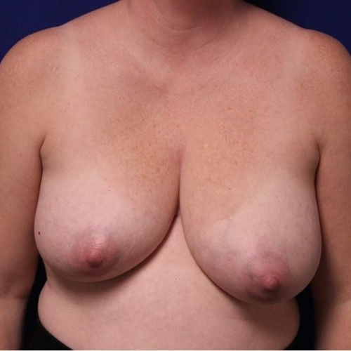 Unilateral breast reduction