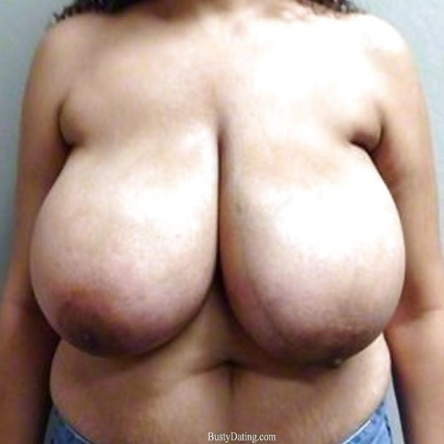 Bulk billed breast reduction